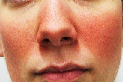 Les rougeurs touchent principalement les peaux fines et blanches.