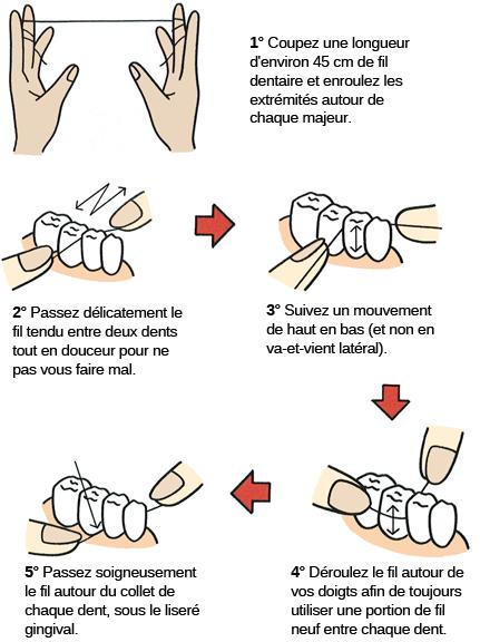 Comment utiliser le fil dentaire facilement.